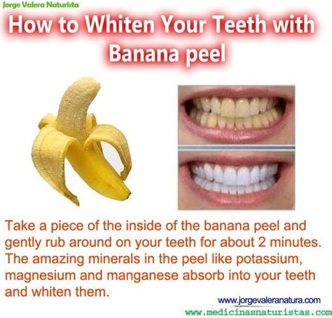 how to whiten your teeth with banana peel medimiss