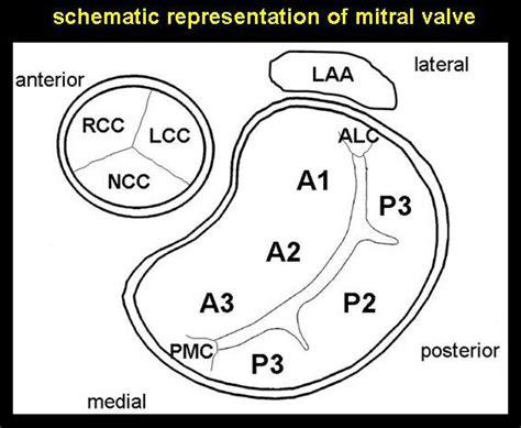 aortic mitral curtain echotalk blog blog de ecocardiografia e cardiologia
