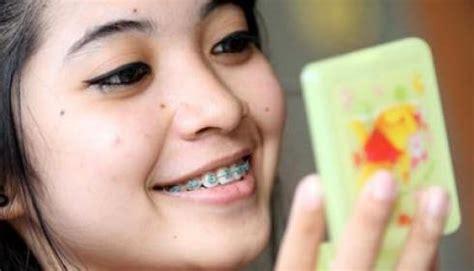 Biaya Pemutihan Gigi Di Dokter mengapa harga pasang behel di dokter gigi mahal