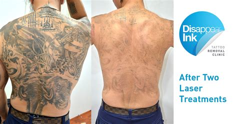 back 2nd treatment disappear ink removal clinic