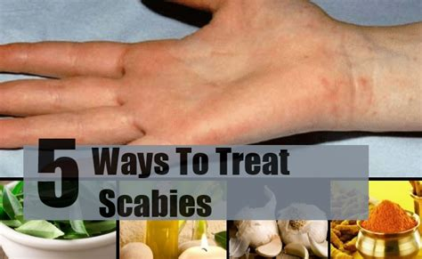 5 best and effective ways for scabies treatments find