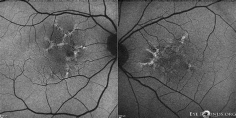 pattern dystrophy macular pattern dystrophy associated with myotonic dystrophy the