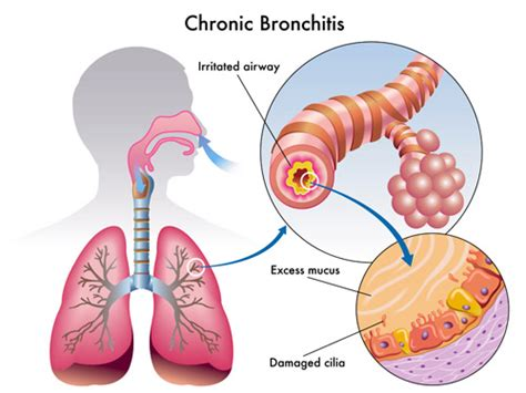 coughs after water water can heal water and bronchitis and pneumonia apec