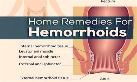best remedy for hemorrhoids 39 home remedies for hemorrhoids relief
