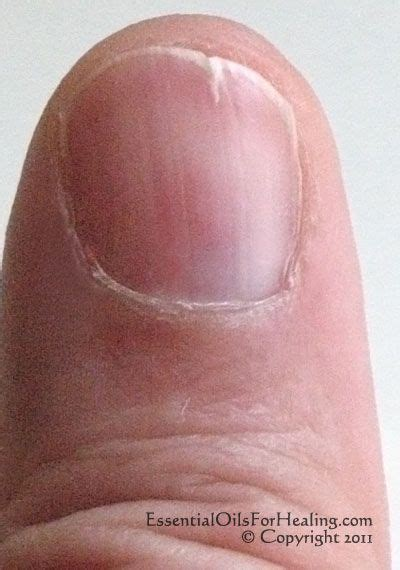 split nail bed 25 best ideas about hair and nails on pinterest black
