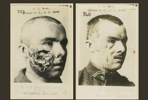 Most Important Cosmetic Surgery Advances In Past 5 Years Podcast by 149 Best World War 1 Injuries Images On World