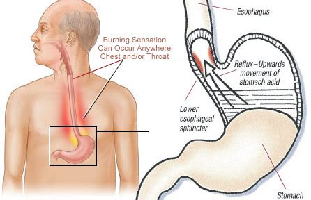 heartburn after c section january 2014 stomach acid heartburn