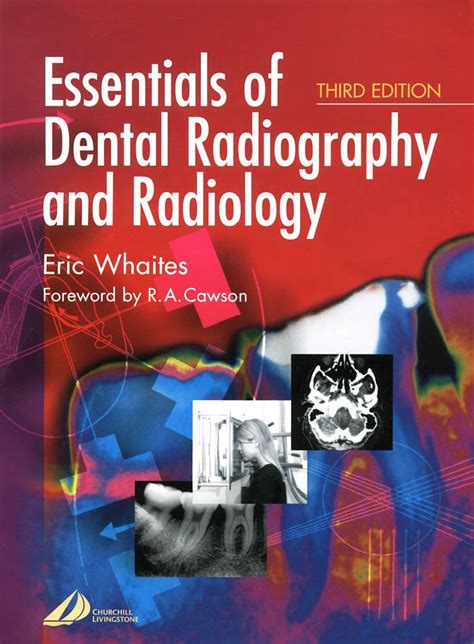 Cd E Book Essentials Of Dental Radiography And Radiology essentials of dental radiography and radiology by