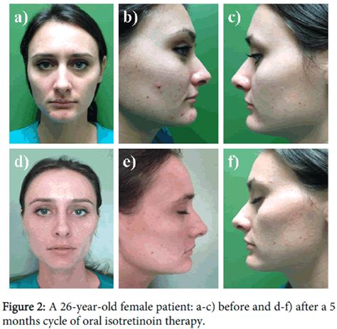 Detox After Accutane by Gender Matter In Isotretinoin Therapy For Acne Vulgaris A
