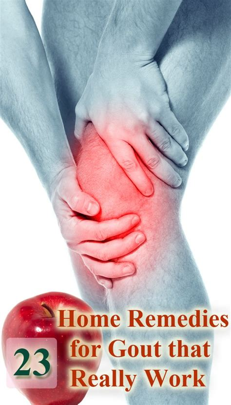 58 best gout images on gout remedies health