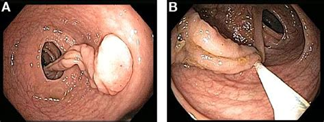 rectal bleeding after c section stalk ing the etiology of rectal bleeding gastroenterology