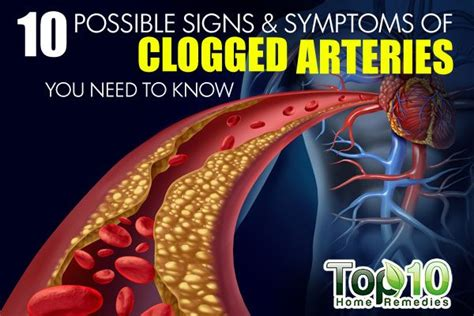 signs  symptoms  clogged arteries