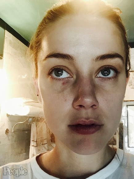 amber heard and johnny depp photos show alleged domestic