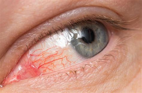 eye infection how to prepare saline solution to get rid of an eye