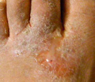 funghi bambini alimentazione funghi ai piedi bambino prevenire e curare mamma