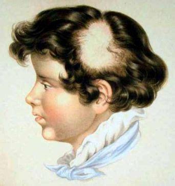 ophiasis pattern hair loss alopecia areata alopecia areata history