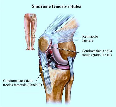 ginocchio dolore interno laterale sindrome femore rotulea sintomi diagnosi esercizi e