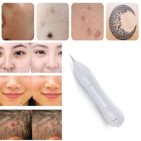 tattoo pen removal useful rechargeable portable laser age spot pen mole warts