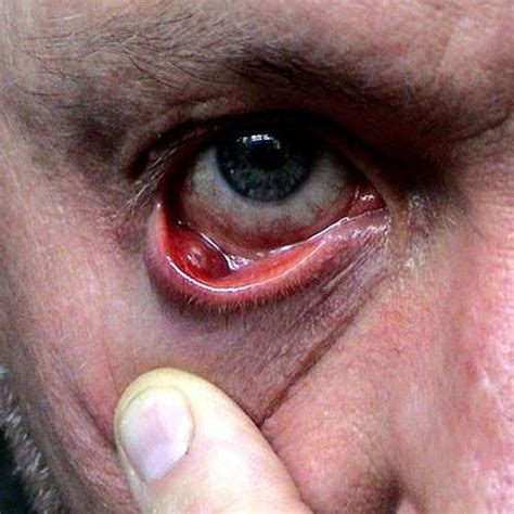 cyst on s eyelid chalazion eyelid meibomian cyst century the symptoms of cysts century