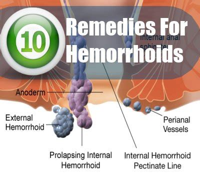 10 home remedies for hemorrhoids treatments cure