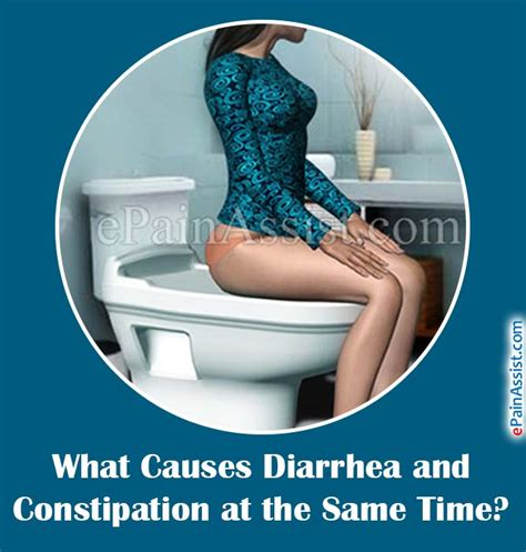 Causes Of Stool And Constipation what causes diarrhea and constipation at the same time