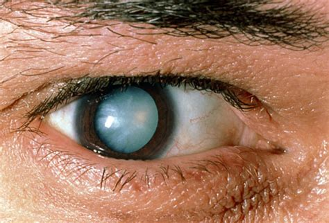 eye problems diabetic retinopathy and pictures of other diabetes related eye problems