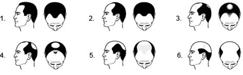 male pattern baldness test men s hair loss treatment test dermatex san diego