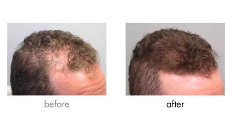 propecia finasteride hair loss medication bernstein propecia rogaine results before after photos bernstein