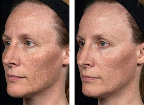 lisa breckenridge new nose laser treatment before after pictures realself
