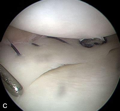 meniscopatia interna lesiones meniscos de rodilla causas sintomas y tratamiento