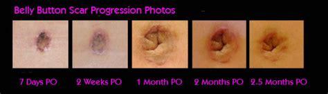 tummy tuck abdominoplasty recovery on