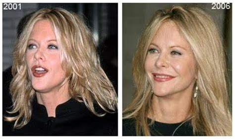 when did meg ryan have a face lift chatter busy meg ryan plastic surgery before after