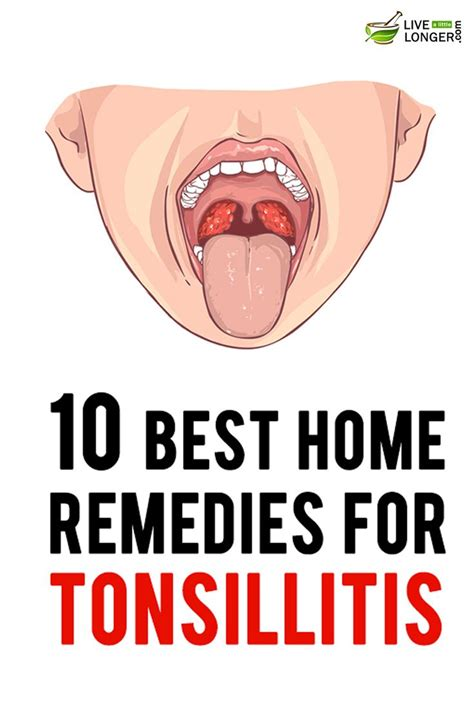 Home Remedies For Tonsillitis by 25 Best Ideas About Tonsilitis Remedy On