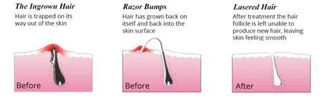 does waxing cause ingrown hairs ingrown hair laser hair removal center nyc aesthetic