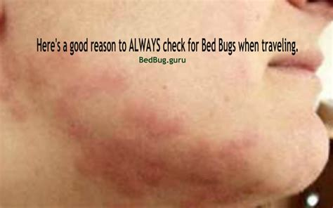 bed bug bite on face bed bug bites on face pictures to pin on pinterest pinsdaddy