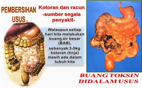 M Plan Miki Prune Extract jual miki prune extract m plan murah surabaya