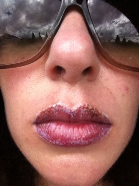 tattoo lips aftercare how to get rid of lip scabs quora