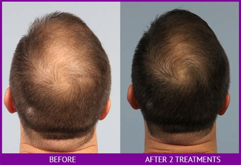 platelet rich plasma prp for hair restoration