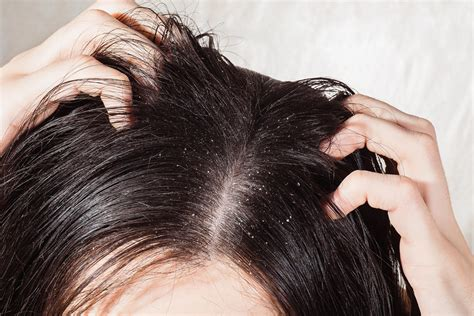 Do Hair Dryers Cause Dandruff greasy hair surprising causes locks reader