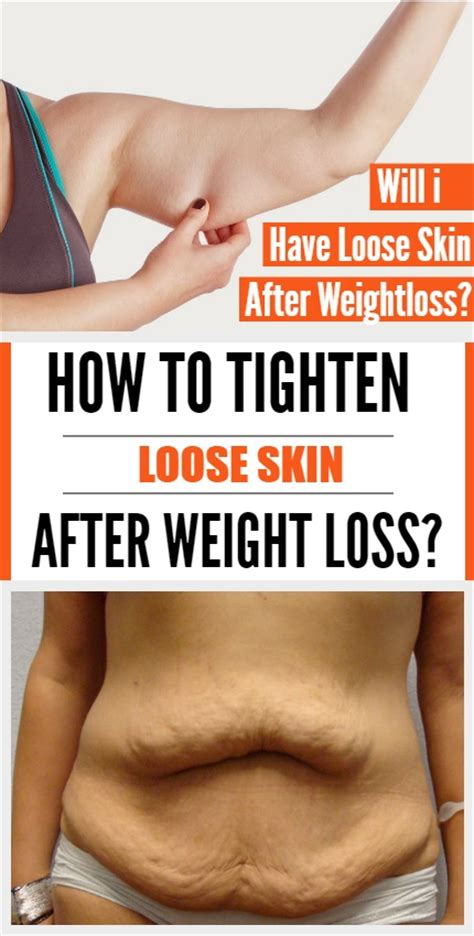 How To Tighten Skin After Weight Loss by How To Tighten Skin After Weight Loss Popcane