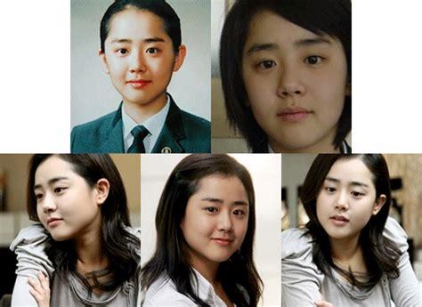 Son Ga In Plastic Surgery | crunchyroll forum who s more attractive korean