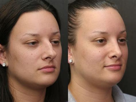 rhinoplasty before amp after photos worcester ma