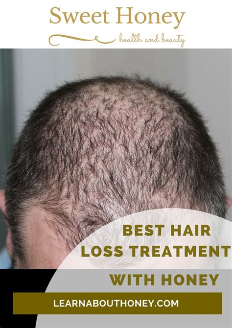 best hair loss treatment best treatment for hair loss with color treated hair best