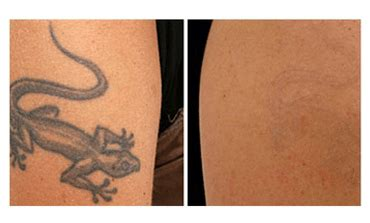 laser tattoo removal salt lake city steven jepson m d