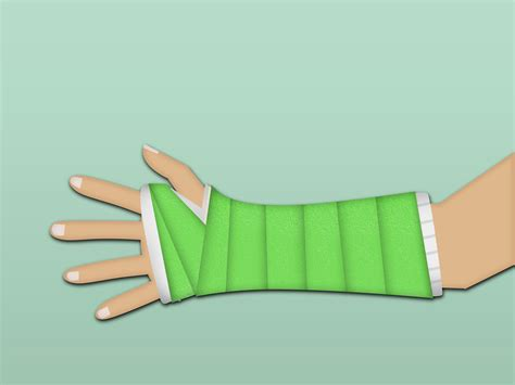 3 Ways To Make A Arm Cast Wikihow