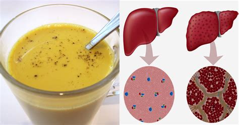 Turmeric And Liver Detox by Get A Complete Liver Detox In A Week With This Turmeric