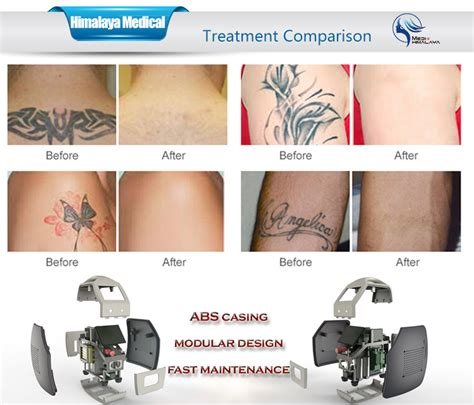 tattoo removal equipment cost q switched nd yag laser removal and nail fungus