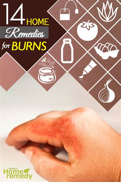 burns home remedies natural treatments  cures search