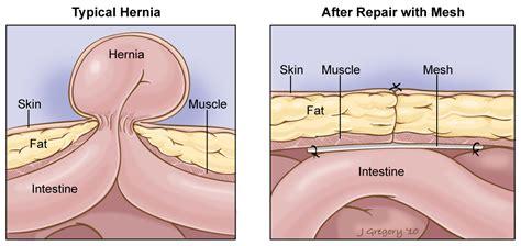 hernia diagram the gallery for gt femoral hernia repair