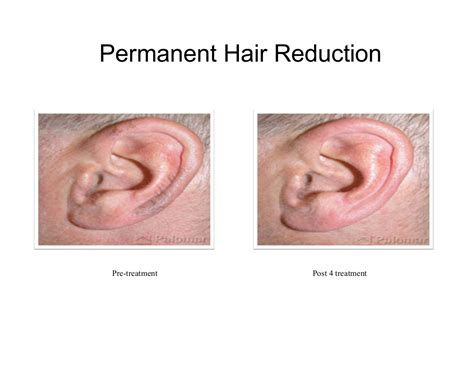 how to permanently remove nose and ear hair realselfcom remove ear hair permanently om hair